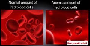 Pengobatan Penyakit Anemia