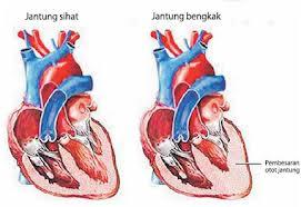 Pengobatan Tradisional Penyakit Jantung Alami