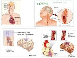 Obat Penyakit Stroke Alami
